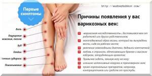 варикоз на ногах причины - персональный флеболог
